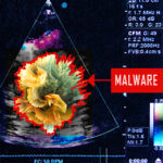 Cyberdefence: detection of malware in medical imaging technology (CheckPoint)
